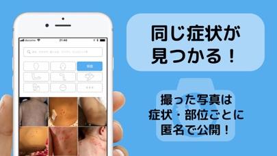 アトピー見える化アプリ-アトピヨのおすすめ画像3