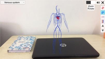 AR Vascular system screenshot 3
