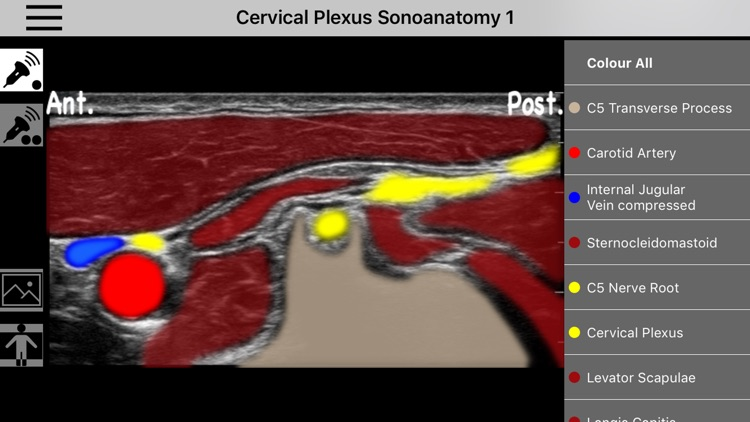 AnSo Anaesthesia Sonoanatomy screenshot-4