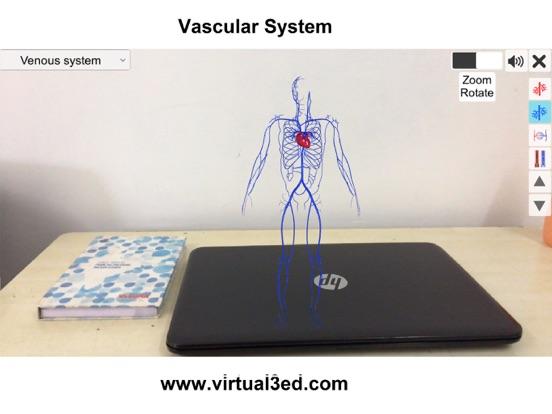 AR Vascular system screenshot 9