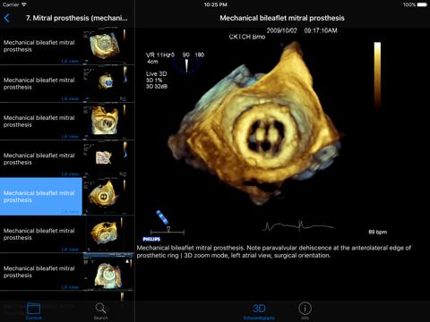 CARDIO3®3D Echocardiography HD - náhled