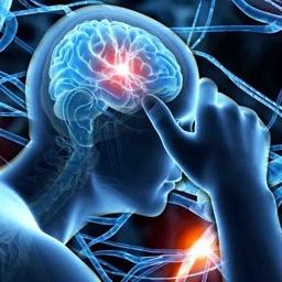 Neurology Quiz