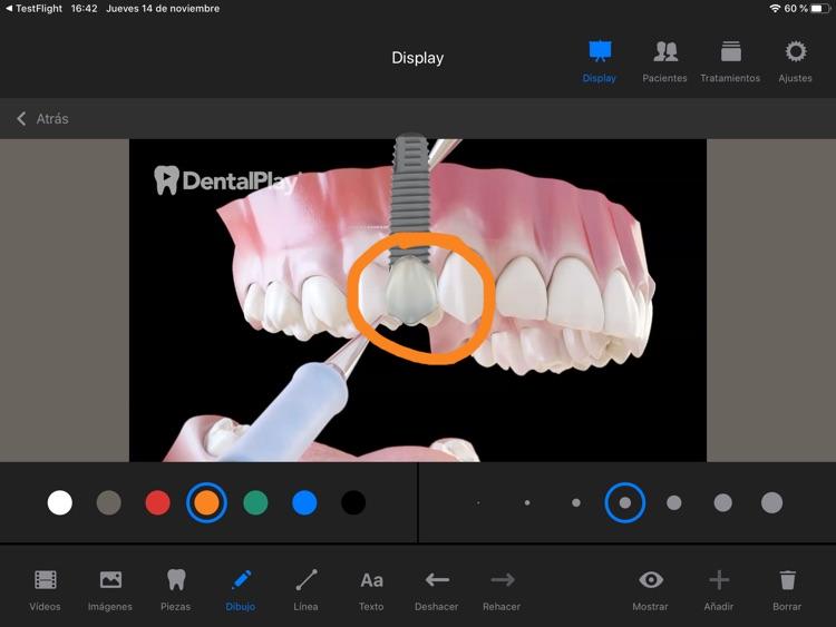 Dentool screenshot-5