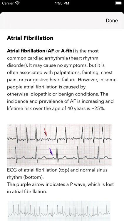 ECG / EKG screenshot-6