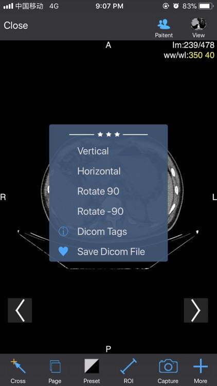 Dicom3D - Easy and Powerful screenshot-3