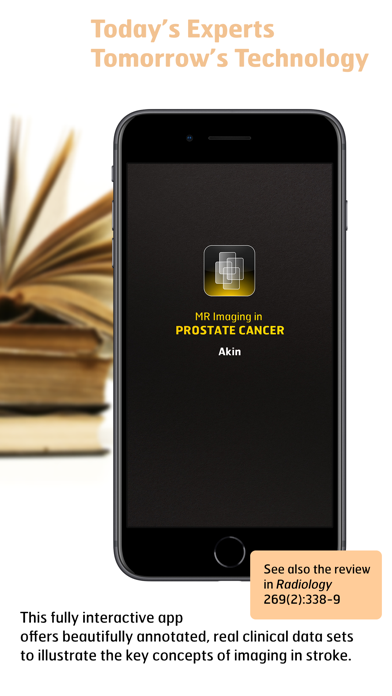 Radiology - Imaging in Stroke screenshot one