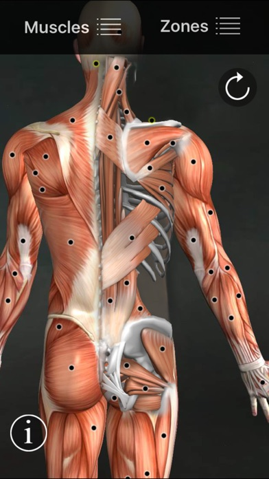 Muscle Trigger Points Screenshot