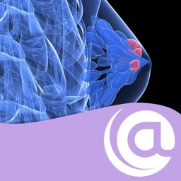 Breast Cancer @Point of Care™