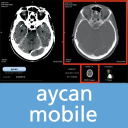 aycan mobile