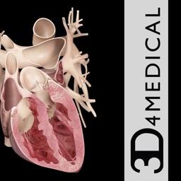 Heart Pro III - iPhone