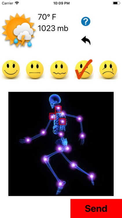 Arthritis Pain Radar