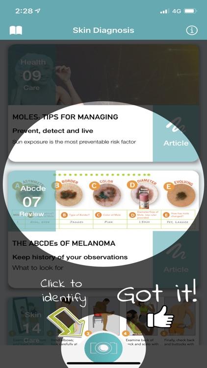 Skin Checker For Your Mole screenshot-3