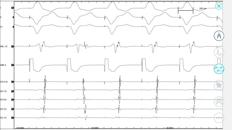 Cardiac Arrhythmia Challenge screenshot-6