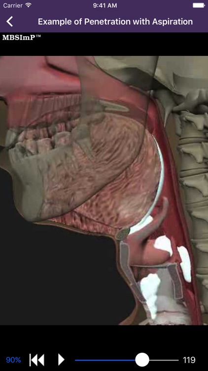 Dysphagia screenshot-1