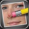 ニキビ消しゴム (Pimple Eraser) - iPadアプリ