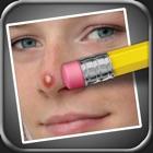 Apagador de Espinhas (Pimple Eraser) icon