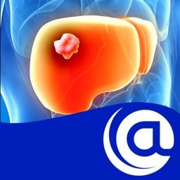 Hepatocellular Carcinoma @PoC