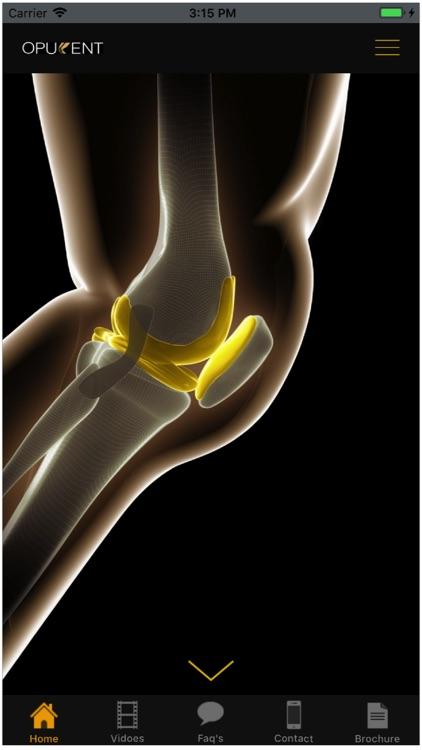Opulent Knee