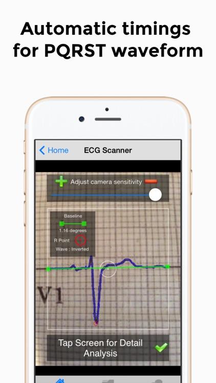 Doctor ECG guide & calculator screenshot-3