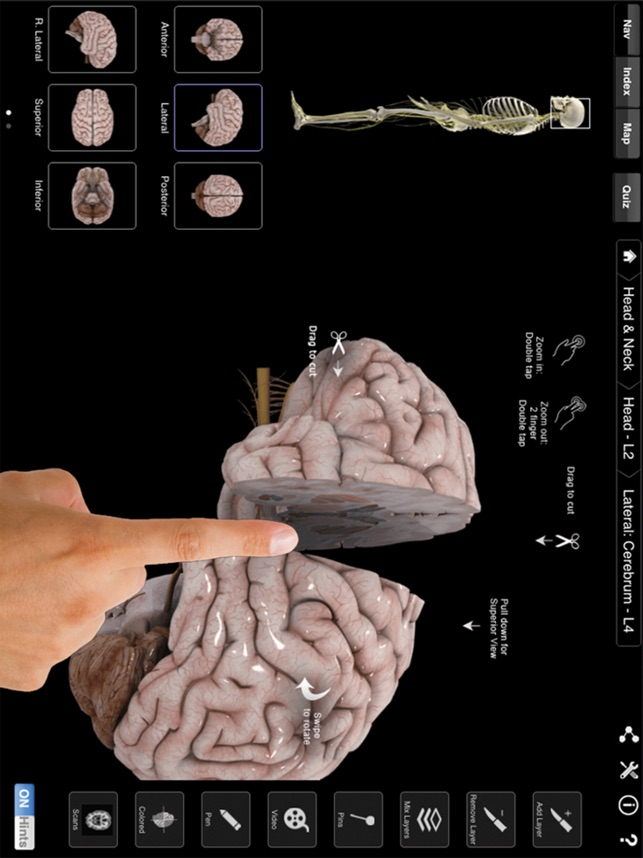 Brain & Nervous System Pro III on the App Store