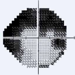 visualFields easy