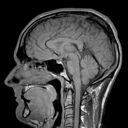 MRIcontrast