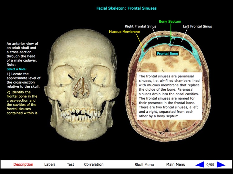 Gross Anatomy of the Skeleton screenshot-0