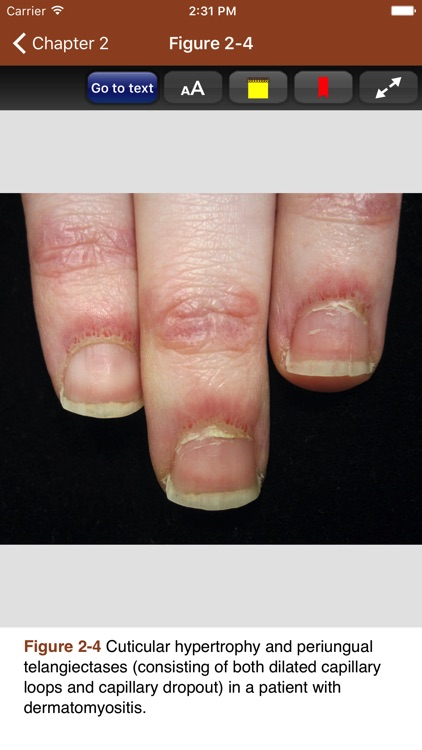 Derm Signs of Systemic Disease screenshot-3