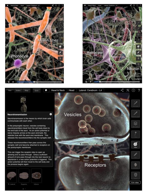 Brain & Nervous System Pro III Screenshots