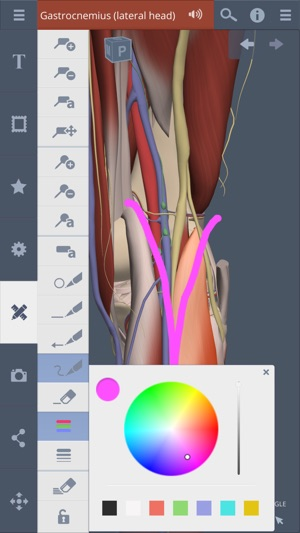 Knee 3d Real Time On The App Store