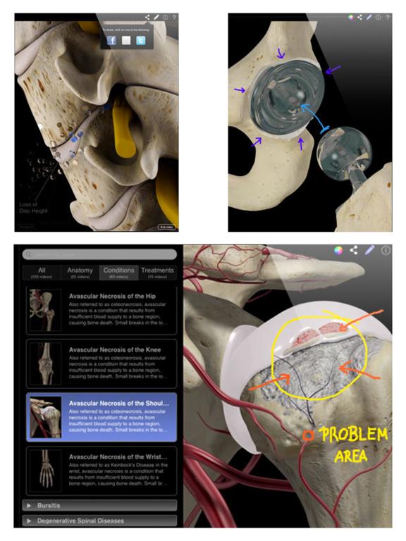 Orthopedic Patient Educationのおすすめ画像4