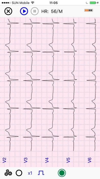 UltraLS   ECG SpO2 TEMP screenshot three