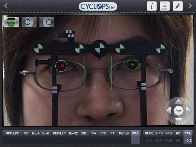 Cyclops Lite screenshot-3