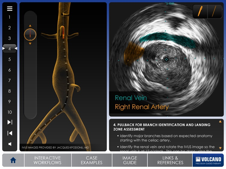Aortic IVUS screenshot-1