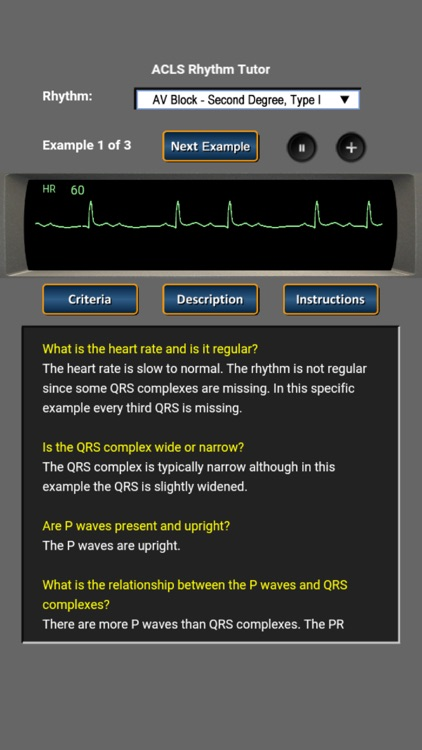 ACLS Rhythm Tutor screenshot-1