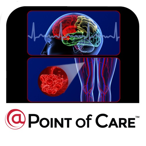 Stroke Prevention in Afib @Point of Care™