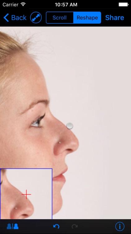 FaceTouchUp Nose Job & Rhinoplasty Simulator