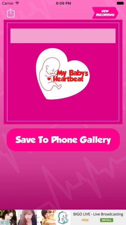 My Baby's Beat - Baby Heart Prenatal Listener