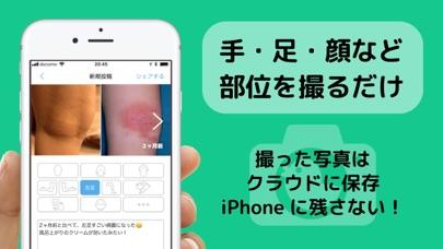 アトピー見える化アプリ-アトピヨのおすすめ画像5