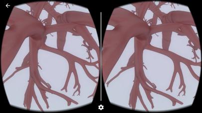 AZ Respiratory VRのおすすめ画像4