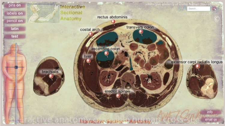 sAnatomy screenshot-3