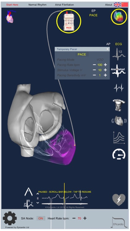 Intelligent Heart Sim AFib screenshot-4