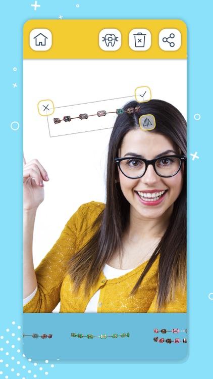 Braces on Teeth – Stickers screenshot-3