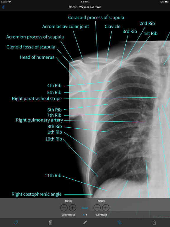 Normal X-Rays and Real Cases Screenshots