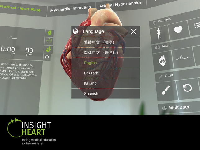 ‎INSIGHT HEART Screenshot