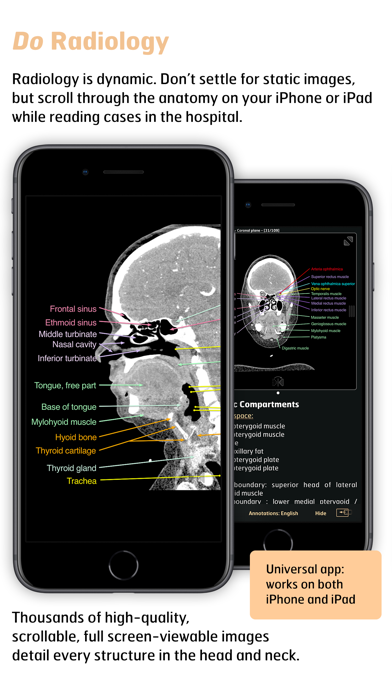 Radiology - Head&Neck Anatomy screenshot 3