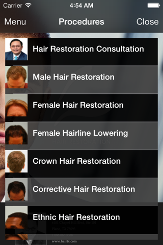 Dallas Hair Transplant - náhled