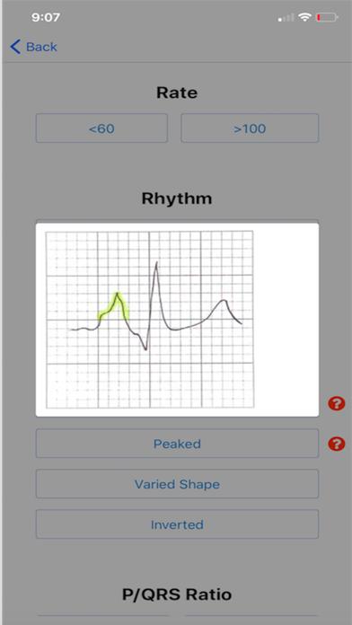 EKG DDX Screenshots