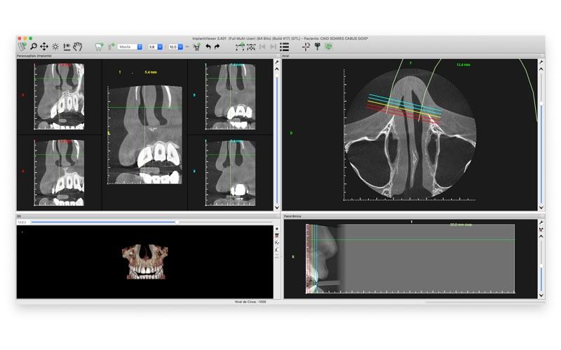 ImplantViewer скриншот программы 1