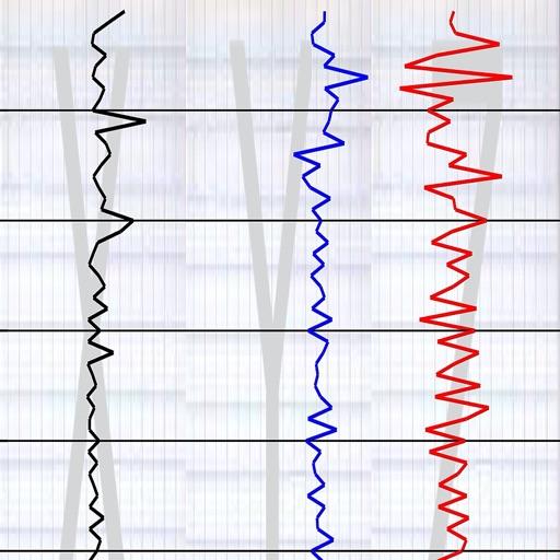 Vibration Detect II